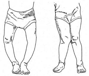 Lenkveida kajas deformacijas